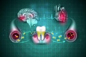 Salud cardiovascular y periodontal