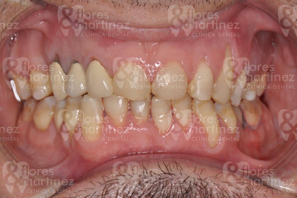 Dentadura frontal (antes)