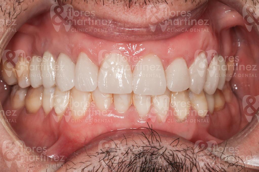 Dentadura frontal (después)