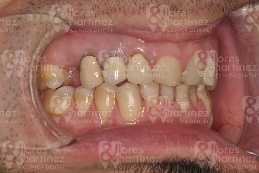 Dentadura lateral (antes)
