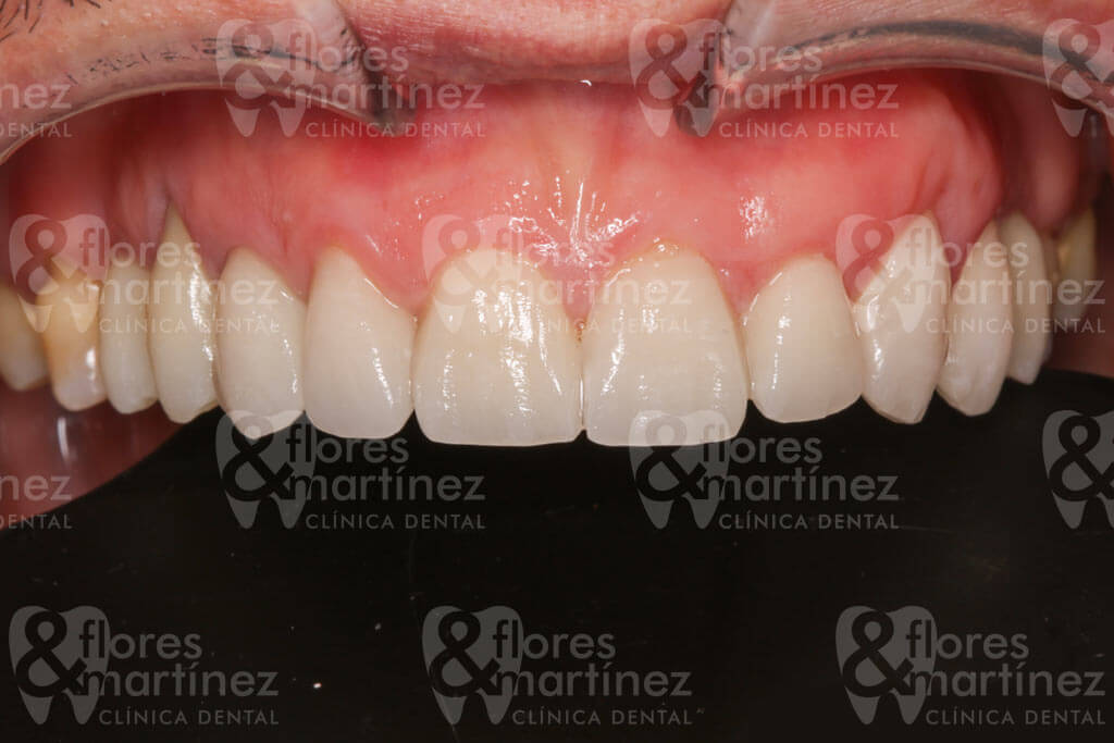 Dentadura superior (después)