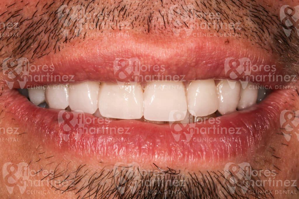Sonrisa frontal