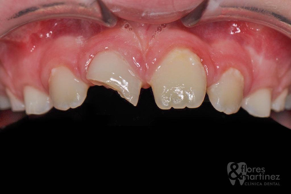 Traumatismo dental: antes