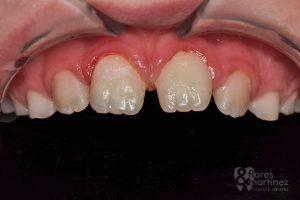 Traumatismo dental: después