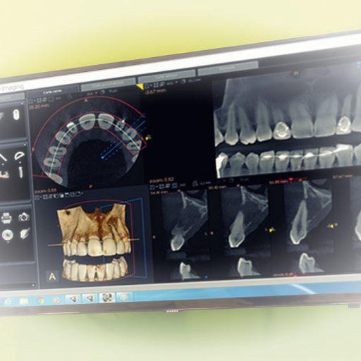 Radiovisografia Digital